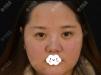 距离我找苏州薇琳狄峰做面部吸脂减肥2个月了,毕竟漂亮才是王道