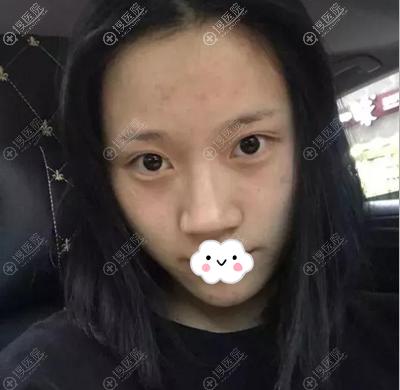 成都陈荣亮隆鼻术前照片