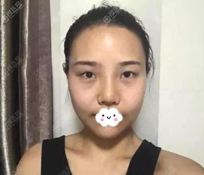 陈荣亮鼻综合术前照片