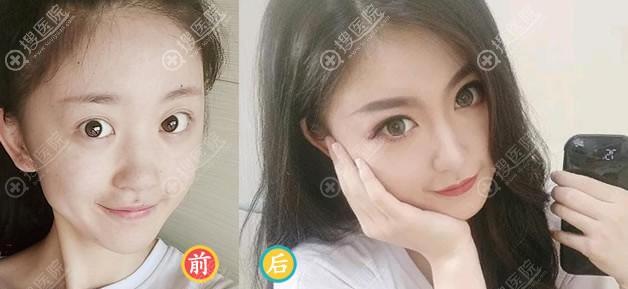 北京薇琳整形田秋梅鼻综合隆鼻案例