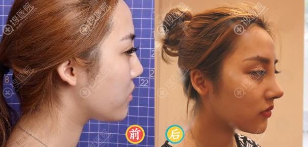 北京薇琳王小东肋软骨隆鼻案例