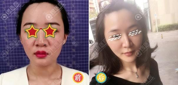 北京薇琳刘丽面部线雕案例