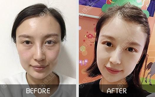 北京紫洁医美不开刀祛眼袋案例
