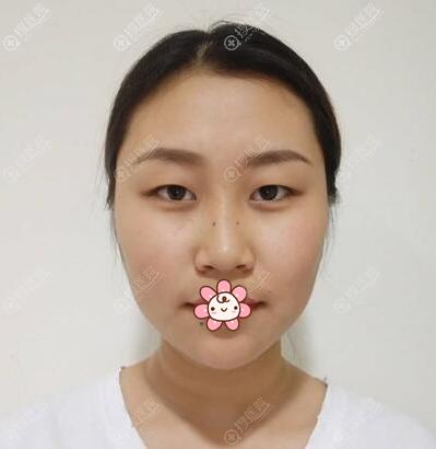割双眼皮术前素颜照片