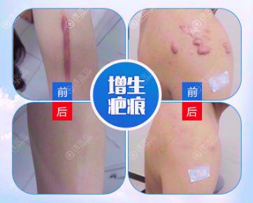 昆明同仁医院疤痕修复术后效果