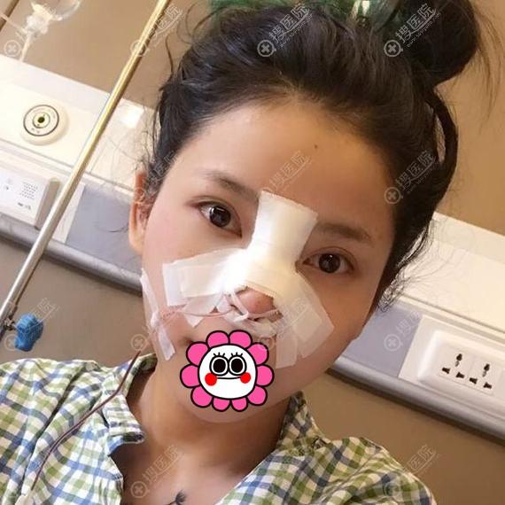 耳软骨隆鼻术后第1天