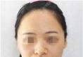 对比了宁波薇琳医美曾举和张广巍的案例后找曾举做了鼻综合隆鼻