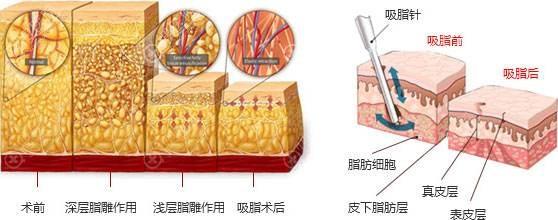 多层立体吸脂原理