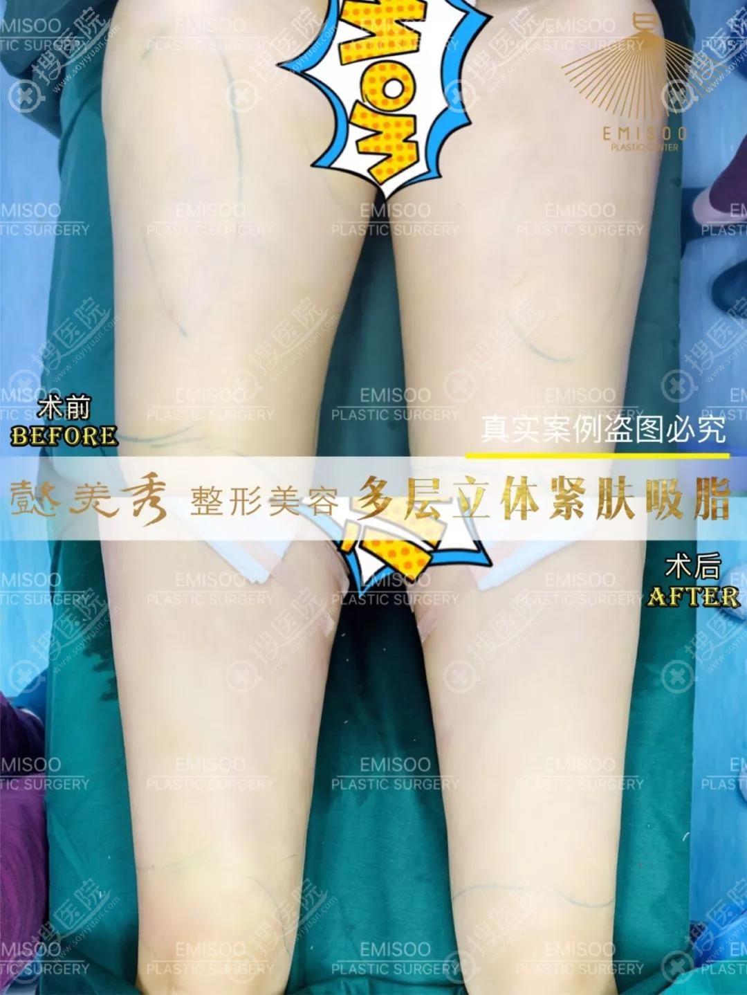 广州懿美秀吸脂瘦大腿效果
