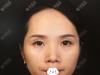 深圳美莱徐占峰自体脂肪面部二次填充术后一个月基本不肿了