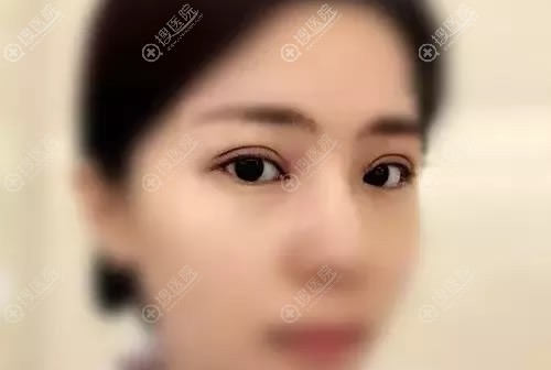 西安美好医院李世民双眼皮案例