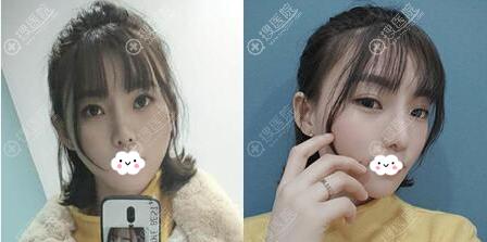艳冠硅胶假体+耳软骨鼻综合半个月