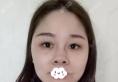 选择找杭州美联致美整形医院吴明龙做隆鼻只因不想被人叫猪鼻子