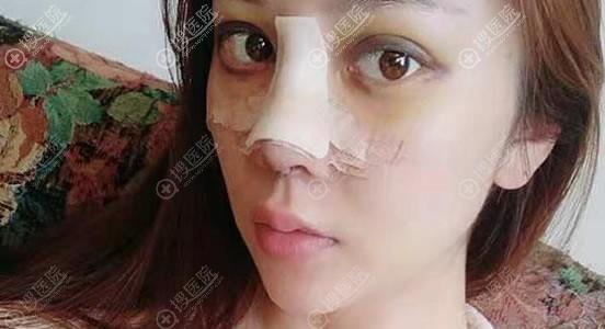 昆明yestar鼻修复案例3天效果