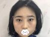 花近一万元在重庆铂生做了光纤溶脂瘦脸,术后3个月恢复图分享