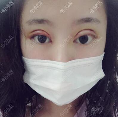 刘向文双眼皮开眼角术后效果
