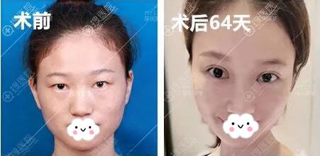 深圳美莱肖峰双眼皮上睑下垂矫正术后对比