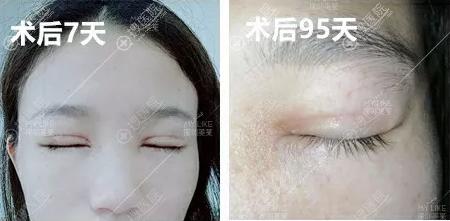 深圳美莱肖峰双眼皮术后眼皮恢复情况