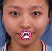这次幸好找广州紫馨韩国院长李政佑做双眼皮修复让我很满意