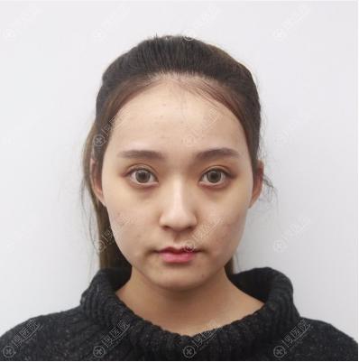 去重庆华美做颧骨下颌角术前照片