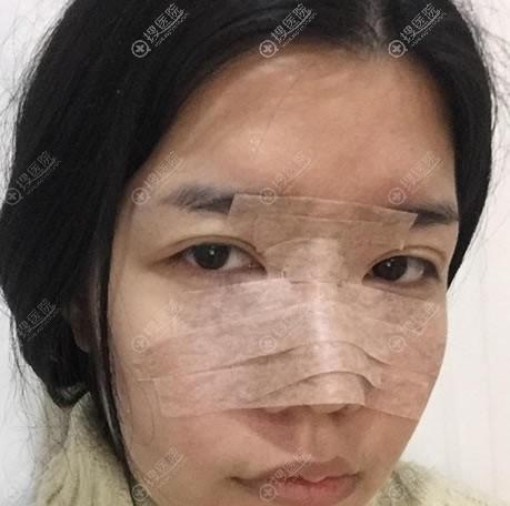 东莞维多利亚陈志勇隆鼻案例即刻效果
