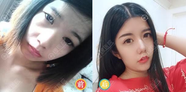 东莞维多利亚假体隆鼻案例对比图