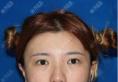 闺蜜非要拉我去上海天大找熊俊文主任做双眼皮和鼻综合隆鼻手术