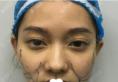 深圳美芮(原雅唯)王权线雕提升加面部吸脂让我的脸型变得精致