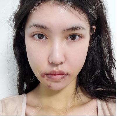 杭州时光宋茂启下颌骨手术10天拆线效果图