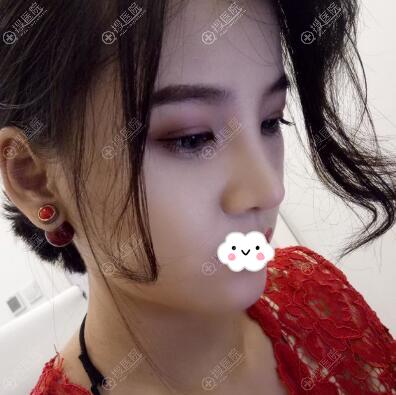 李斌斌综合隆鼻2个月恢复图