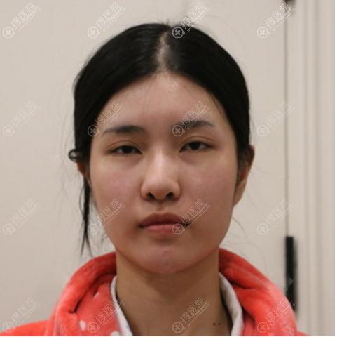 去杭州时光做下颌角术前照片