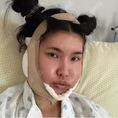 在杭州时光做完下颌角手术戴头套的照片