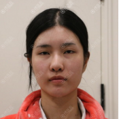 去杭州时光找宋茂启做下颌骨整形才知道下颌角手术是口内切口
