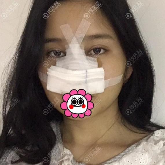 武汉同济医院鼻综合术后即刻效果