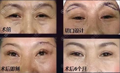 切眉术改善上眼睑松弛下垂案例