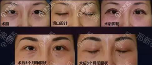 睑缘切口法矫正眼睑下垂案例
