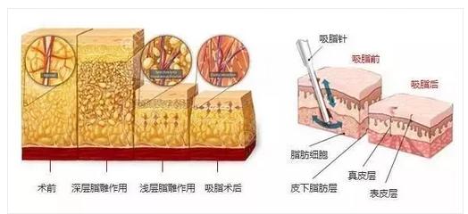 吸脂手术原理效果图