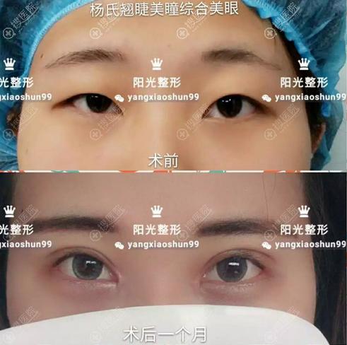 郑州阳光杨小顺眼综合手术效果图