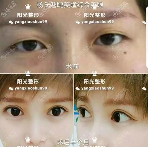 杨小顺切开双眼皮术后10天效果图
