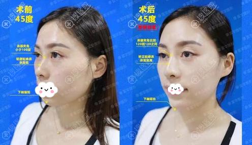 玻尿酸隆鼻丰下巴术前术后对比图