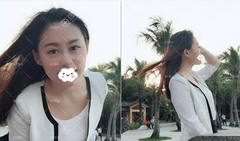 深圳富华李秀林玻尿酸隆鼻丰下巴效果图
