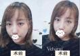 """在重庆鹏爱找黄震亚做了鼻综合手术后,我甩掉了""""匹诺曹""""外号"""