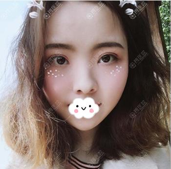 重庆艺星王方鹏双眼皮开眼角术后3个月效果图