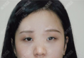 看了西安高一生张林宏的案例后决定找他为我做双眼皮修复和隆鼻