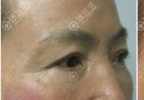 眼皮松弛下垂怎么办?切眉、提眉和双眼皮手术哪个效果好