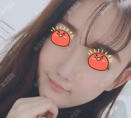 宜昌楚美人韩式海鸥鼻综合案例