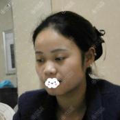 深圳富华整形斯良洪国硅胶假体加耳软骨隆鼻术后一个月恢复照片