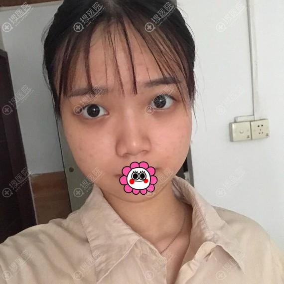 杭州薇琳割双眼皮前