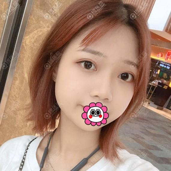 杭州薇琳温科磊眼部综合恢复案例
