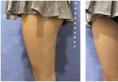 找苏州康美陈勇医生做完吸脂后拿到一份面部腰腹大腿吸脂价格表